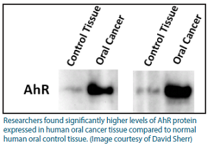 Gel image from the lab showing much higher expression of AhR in oral cancer tissue compared to normal tissue.